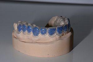 bleeklepel Spier tandprothetiek