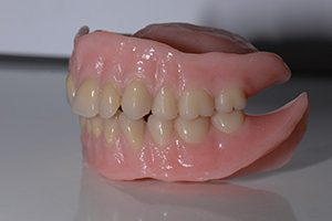 bovenprothese onderprothese spier tandprothetiek