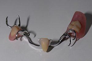 frameprothese spier tandprothetiek