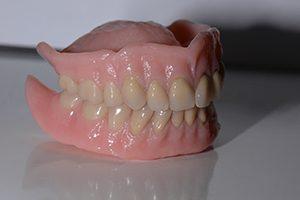 immediaatprothese Spier tandprothetiek
