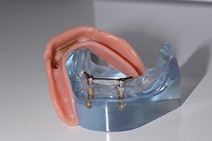 implantaat gedragen prothese Spier tandprothetiek