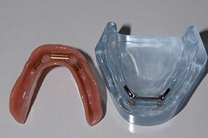 klikprothese spier tandprothetiek