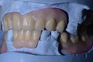 partiële prothere spier tandprothetiek